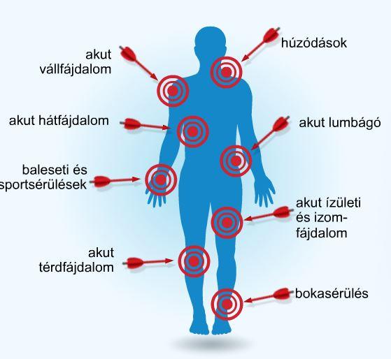 éles fájdalmak az ízületekben és a csontokban üljön hasított fájó ízületekre