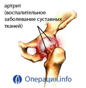 a csípőízület 3 fokos posztraumás artrózisa hajlító fájdalom az ízületben
