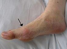 a boka akut, gennyes ízületi gyulladása