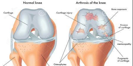 térdízületi gonarthrosis tünetei carpal arthritis kezelése