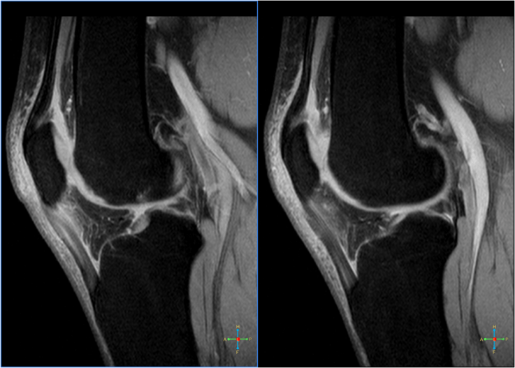 Dr. Diag - Arthrosis deformans genu, femoropatellaris, secunder