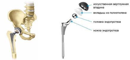 a könyökízületek artrózisa 3 fok