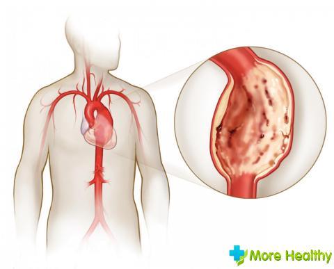 A mitrális szelep prolapsusának tünetei 1,2,3 fok: kötőszöveti patológia megnyilvánulása