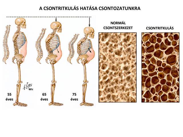 artrózis és csontritkulás diagnosztizálása és kezelése