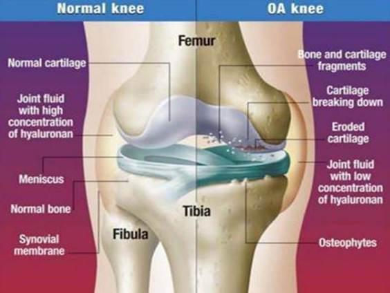 a csigolyás-csigolya artrózisának kezelése