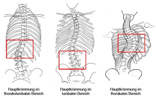 A gerincferdülés (scoliosis) fajtái - Súlypont Ízületklinika