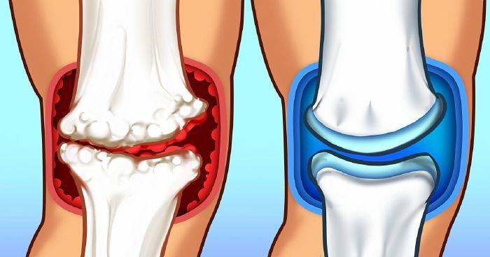 A csípőízület kopása - Okok és tünetek