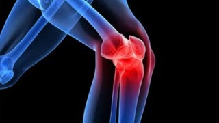 a térd artrózisát kezeljük