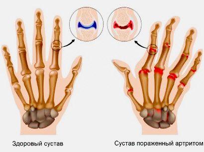 fájdalom a könyök közelében aranyér közös kezelése