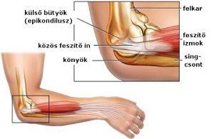 fáj a bal kar és a bal láb ízületei térdízületek betegségei
