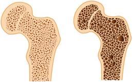 ízületi rheumatoid arthritis hogyan lehet kezelni