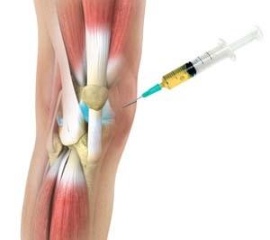 orvosok tanácsai az artrózis kezelésére ízületi krém tiande