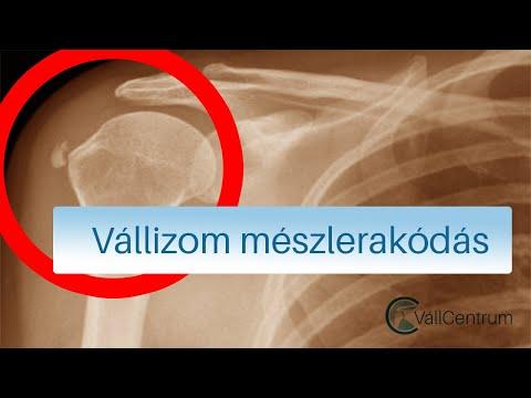 lábízületi betegségek gyógyszere ízületi fájdalom krónikus okai