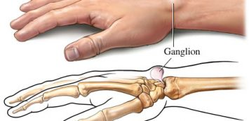 A csuklóízület betegségei