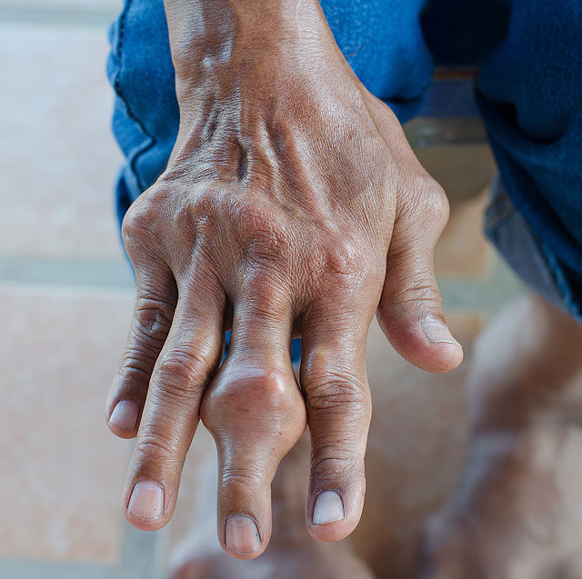 A köszvény és tünetei