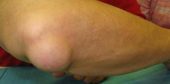 hogyan kell kezelni a hüvelykujj artrózisát