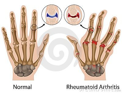 az ujjak artrózisa és kezelése
