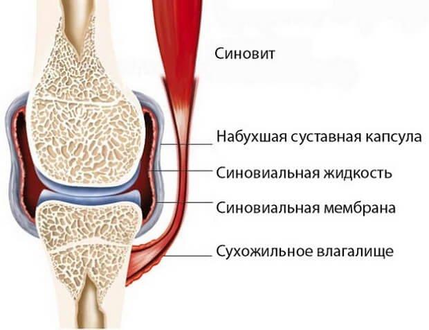 a könyökízület kenőcsének ödéma ez enyhíti az ízületi fájdalmakat