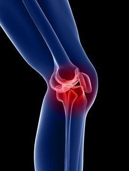 térdízület artrózisa kenőcsökkel történő kezelés fájdalom a bal boka ízületében