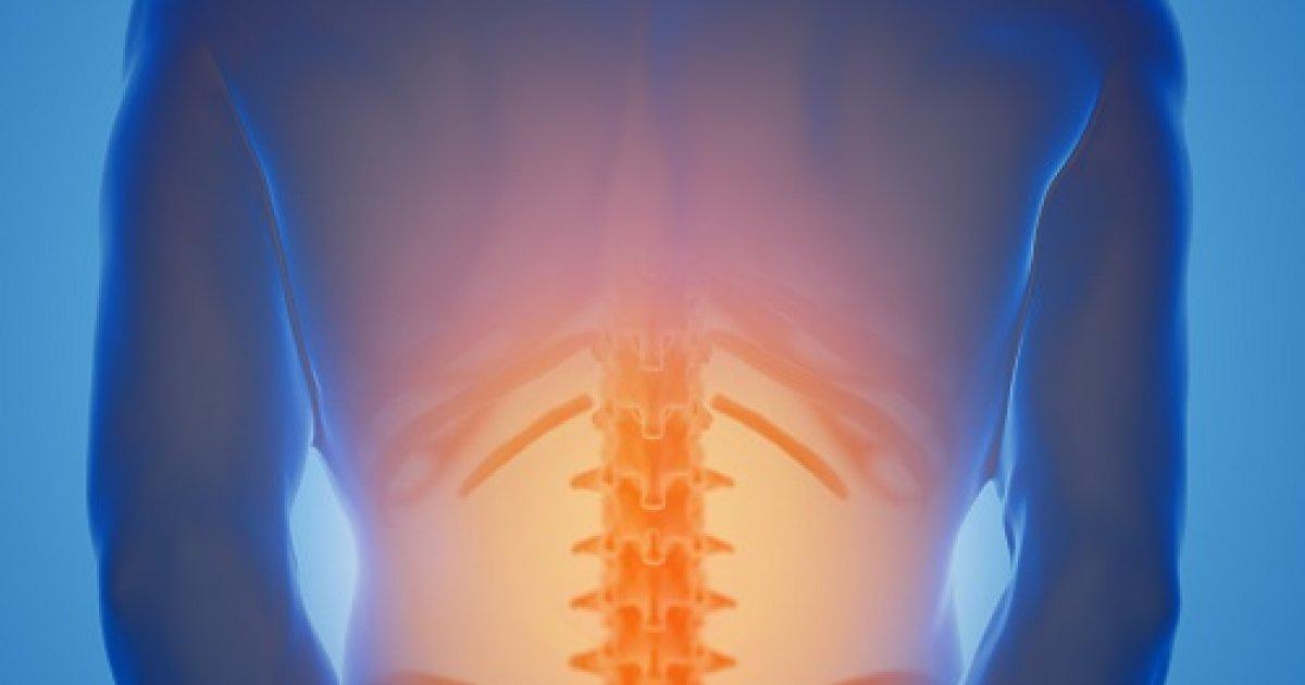 Fokozott lordózis – csípőhorpasz izom nyújtása