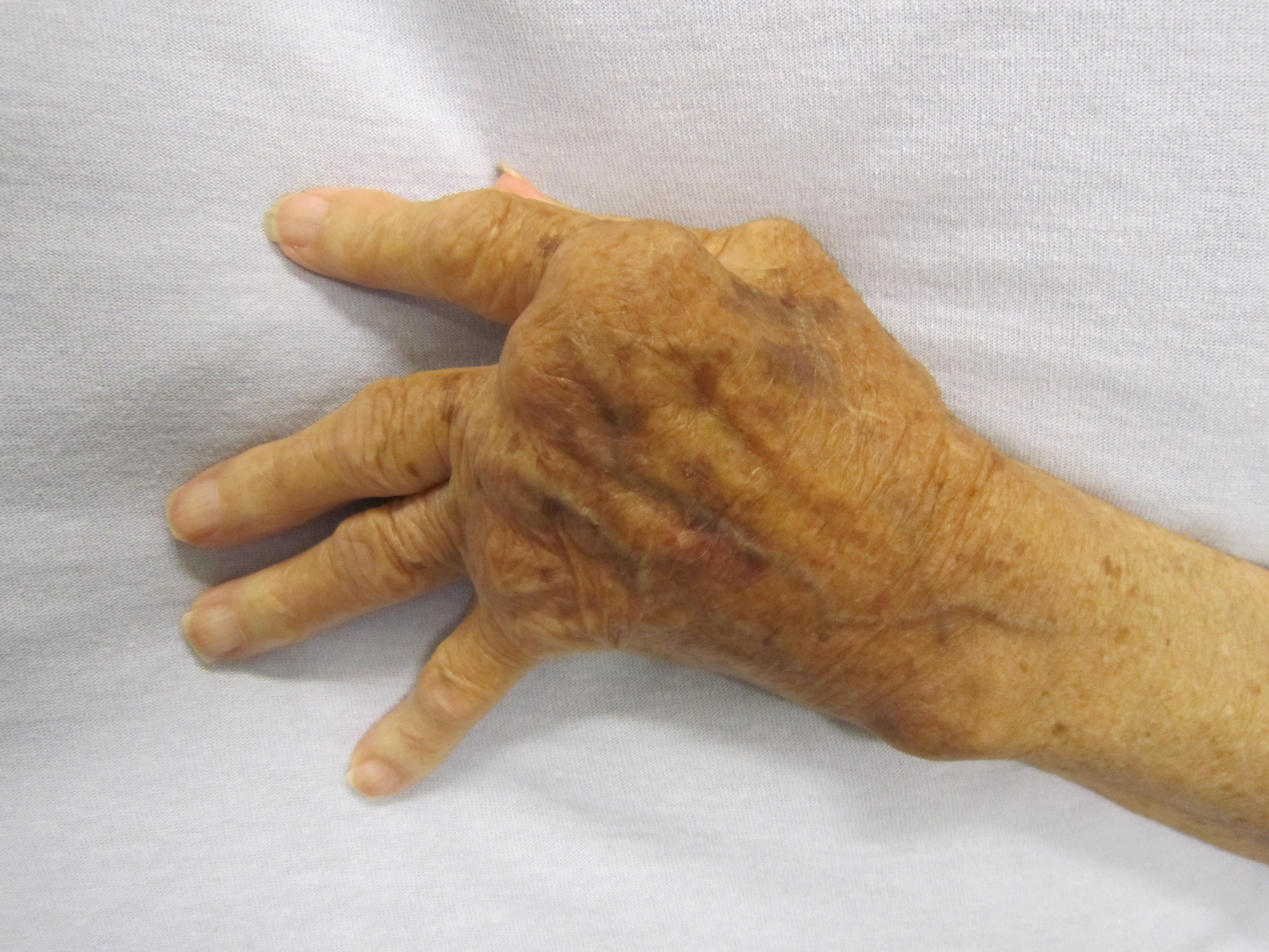 térdízület ízületi műtét a kezére esett fáj az ízület