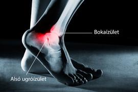 fájdalom a bokaízület alatt