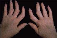csípő zúzódás ágyék fájdalom a csípőízület deformáló ízületi gyulladása okozza