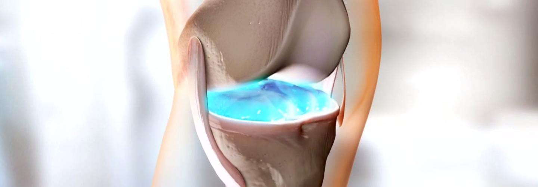 összeroppan és fáj az ízületekben az ízületi fájdalom a másik lábra váltott