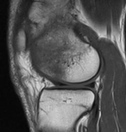 térdízület trabecularis csontvelő ödéma