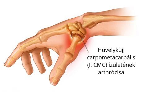 hüvelykujj-izületi betegség