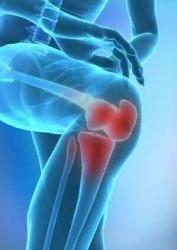 zselatin a deformáló artrózis kezelésében