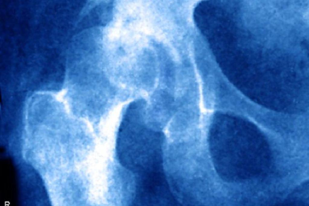 A csípőbetegség tünetei és kezelése - Arthritis July