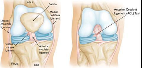ízületi mozgás helyreállítása sérülések után