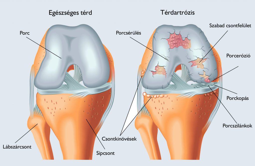 térdízületi kezelés diagnosztizálása súlyosbodás artrózisos kezeléssel