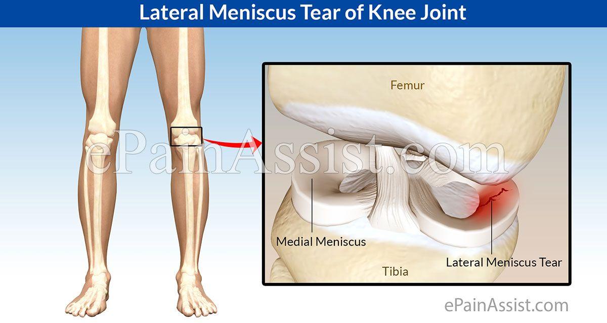 Meniscus kezelése - konzervatív vagy operatív?