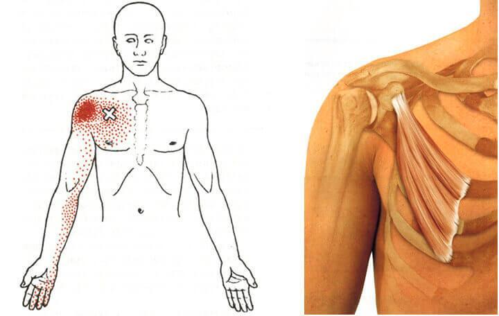 fájnak a vállízület csontjai
