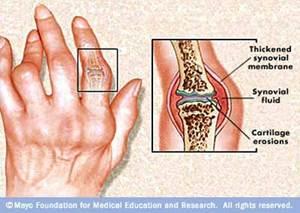 ízületi fájdalom autoimmun betegségei