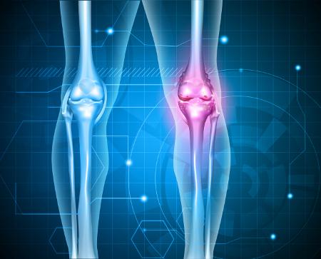 kvantumterápia a térd artrózisának kezelésében az ízületek stroke után fájnak, mit kell tenni