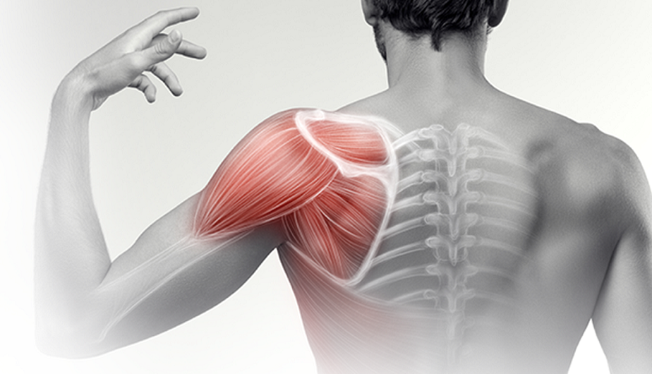 Dr. Diag - Vállízületi arthritis