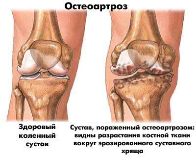 a csípőízület második fokozatának artrózisa
