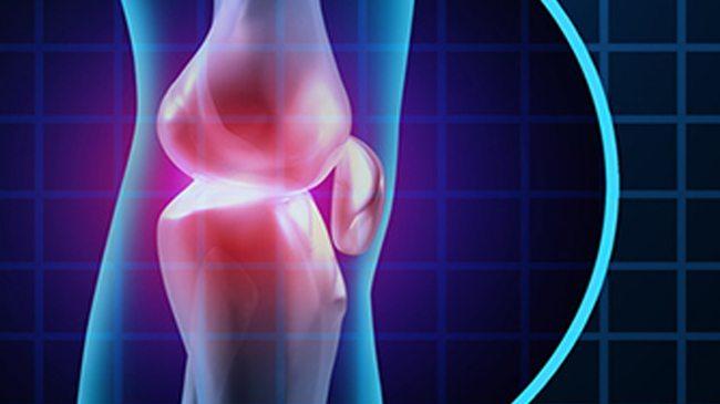 A térdfájdalom 5 leggyakoribb oka - Súlyos betegség is állhat mögötte   Femcafe