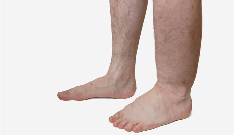 ízületi fájdalmak a lábak közelében