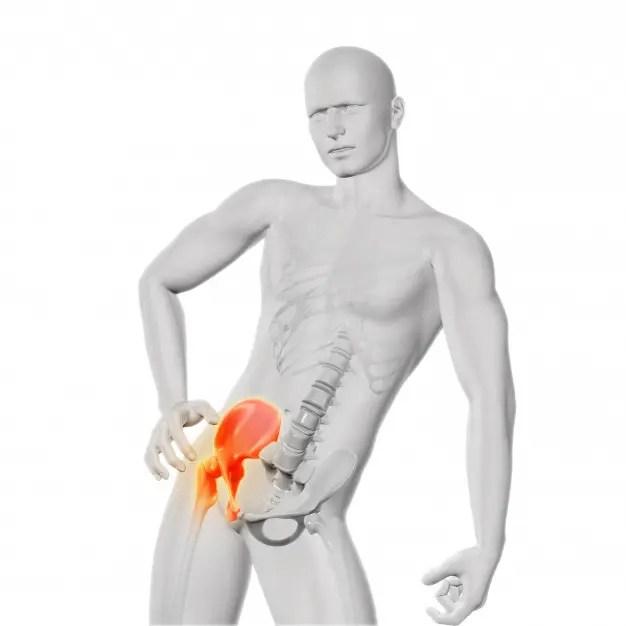 tentorium artrózis kezelés