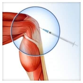 fermatron ízületi kezelés mi a láb artrózisa és kezelése