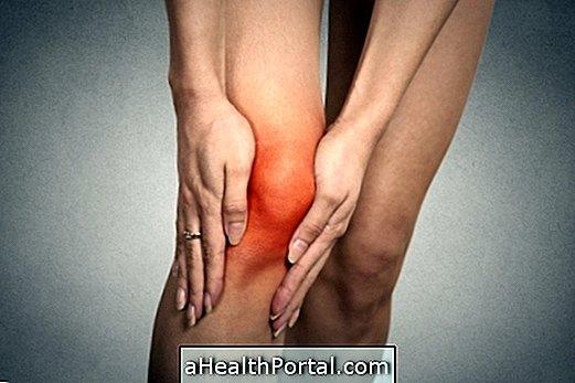 Chondromatosis a térd: egy leírást a tünetek, okok és a kezelés