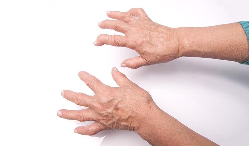 hogyan lehet gyógyítani az ujjain található ízületi gyulladást