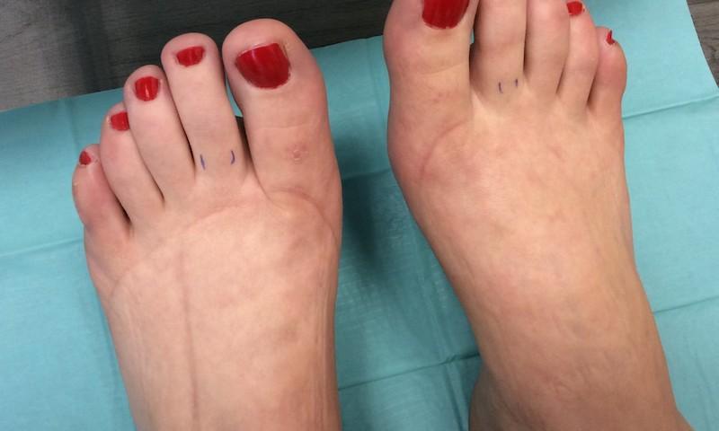 fáj a bal kar és a bal láb ízületei