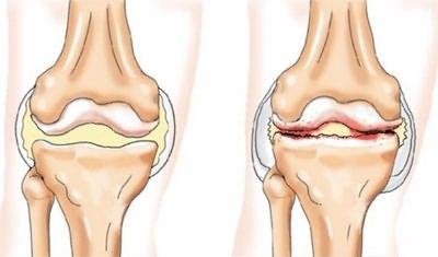 fájdalom a csípőízület esése után fájdalom a csípőízületben sclerosis multiplex esetén