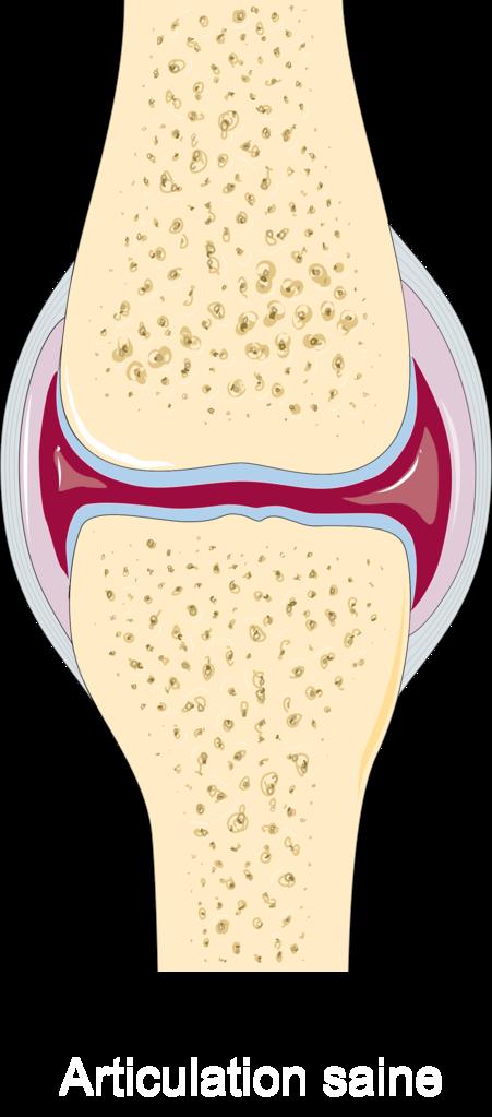 applikátorok artrózis kezelésére ízületi gyulladás a lábban, hogyan kell kezelni