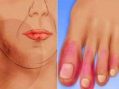 polyarthritis tünetei